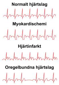 Grafer över EKG