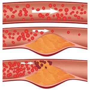Hjärt- och kärlsjukdomar innebär att blod inte kommer fram